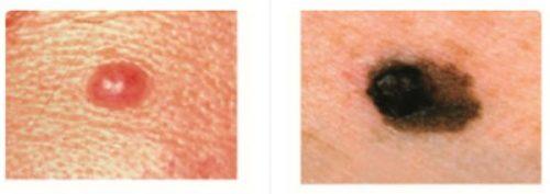Nốt ruồi bình thường và ung thư khác nhau như thế nào?