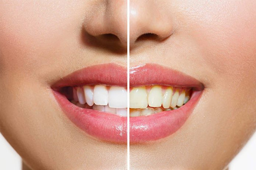 Nguyên nhân răng của bạn ngả màu vàng
